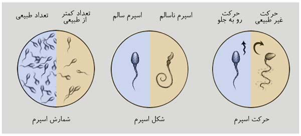 تفسیر آزمایش اسپرم و مایع منی