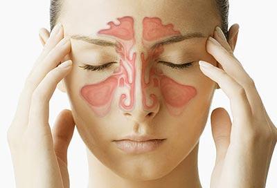بیماری سینوزیت و سینوزیت مزمن